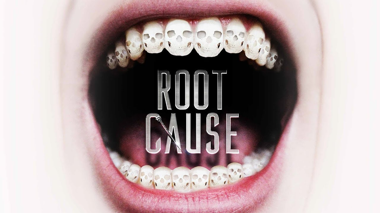 'Root Cause' -- Are dental procedures the origin of all disease?